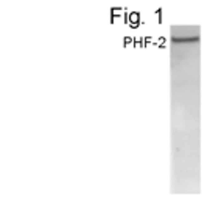 PHF2 Rabbit anti-Human, Polyclonal, Invitrogen 100 µg; Unconjugated