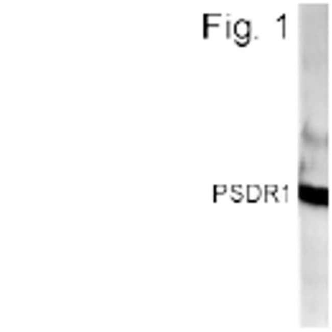 RDH11 Rabbit anti-Human, Polyclonal, Invitrogen 100 µL; Unconjugated