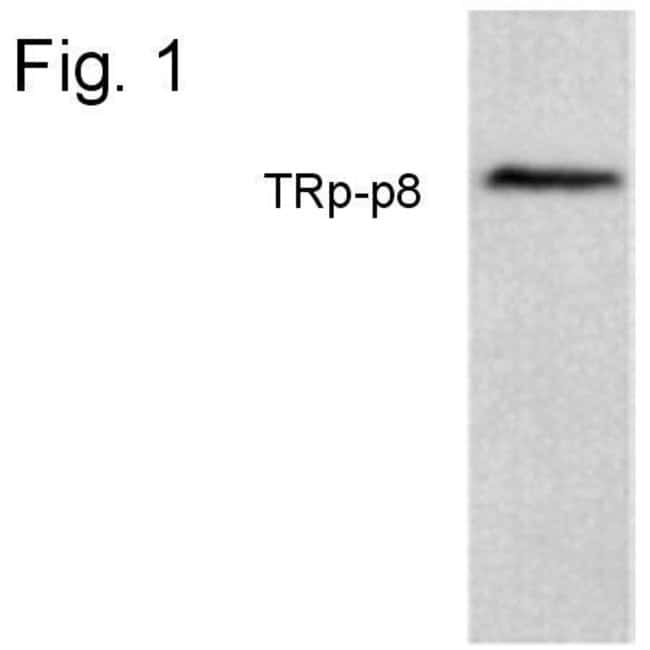 TRPM8 Rabbit anti-Human, Polyclonal, Invitrogen 100 µg; Unconjugated