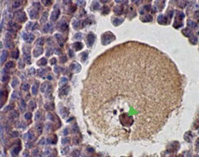 SCP1 Rabbit anti-Human, Mouse, Rat, Polyclonal, Invitrogen 100 µL;
