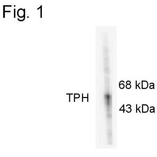 Phospho-Tryptophan Hydroxylase (Ser58) Rabbit anti-Rabbit, Polyclonal,