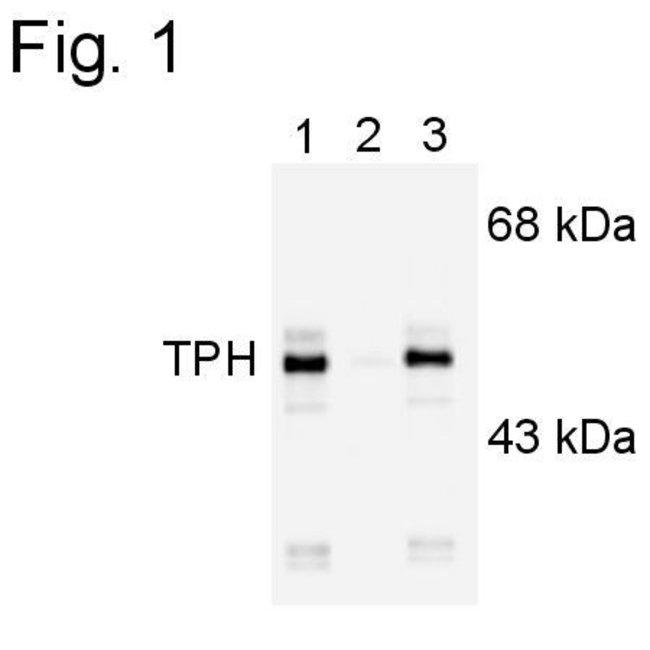Phospho-Tryptophan Hydroxylase (Ser260) Rabbit anti-Human, Rat, Polyclonal,