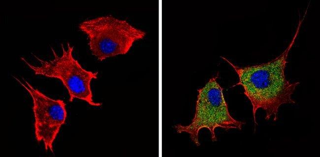 Angiostatin Rabbit anti-Human, Mouse, Polyclonal, Invitrogen 100 µg;