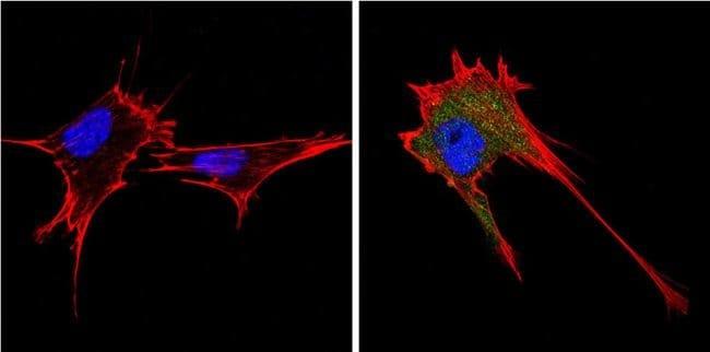 Endostatin Rabbit anti-Human, Mouse, Polyclonal, Invitrogen 100 µg;