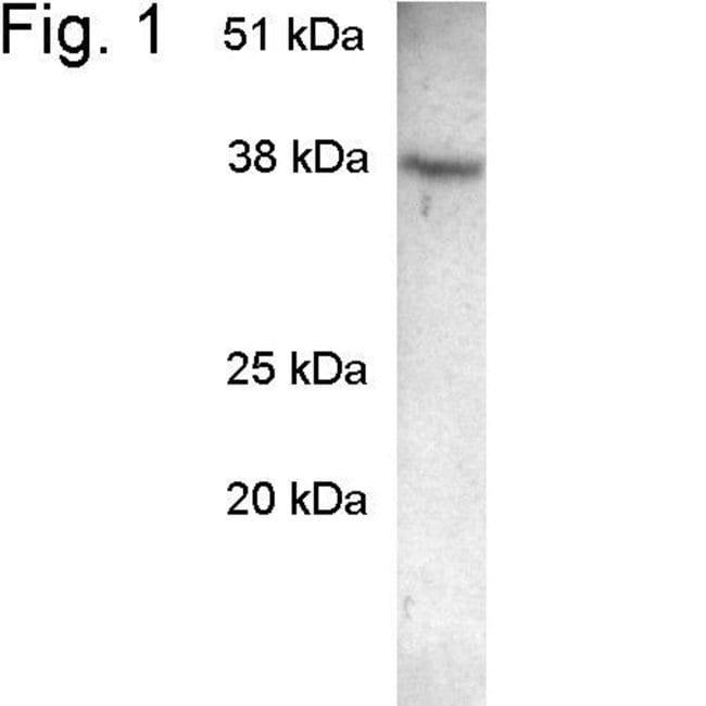 SCAMP2 Rabbit anti-Hamster, Human, Mouse, Polyclonal, Invitrogen 100 µg;