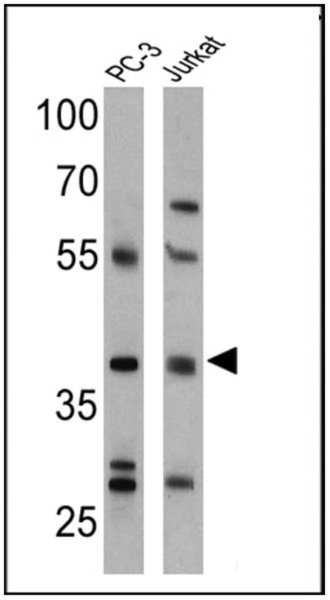 CNR2 Rabbit anti-Human, Polyclonal, Invitrogen 100 µL; Unconjugated