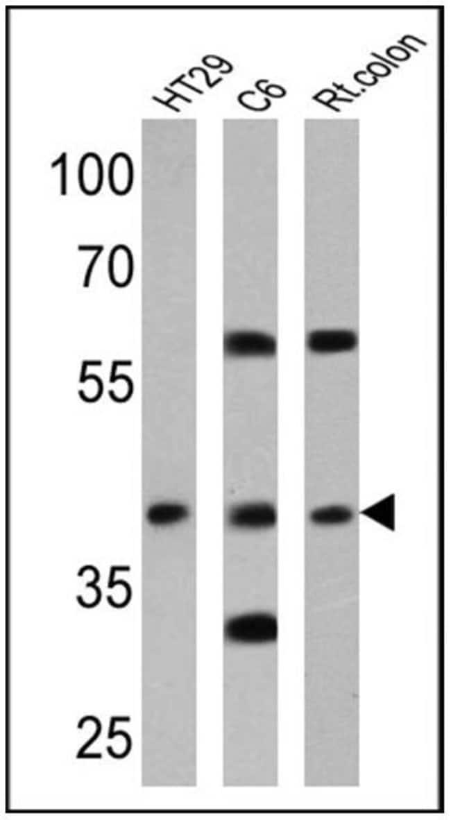 CNR2 Rabbit anti-Human, Rat, Polyclonal, Invitrogen™ 100 μL; Unconjugated Primary Antibodies Cam to Car