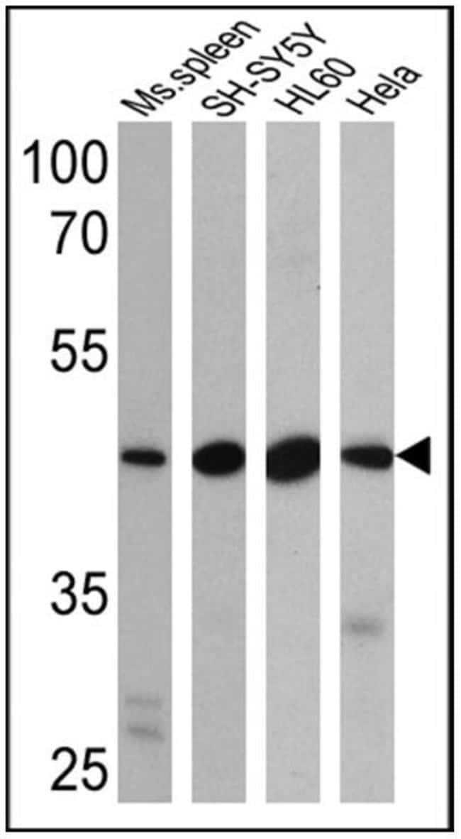 BACE2 Rabbit anti-Human, Mouse, Rat, Polyclonal, Invitrogen 100 µg;