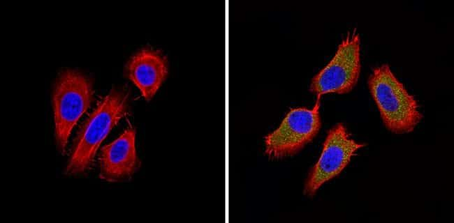 BACE2 Rabbit anti-Human, Mouse, Polyclonal, Invitrogen 100 µg; Unconjugated