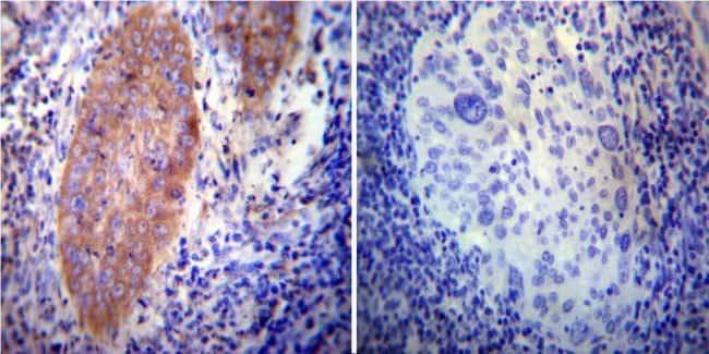 VAMP4 Rabbit anti-Human, Mouse, Rat, Polyclonal, Invitrogen 100 µg;
