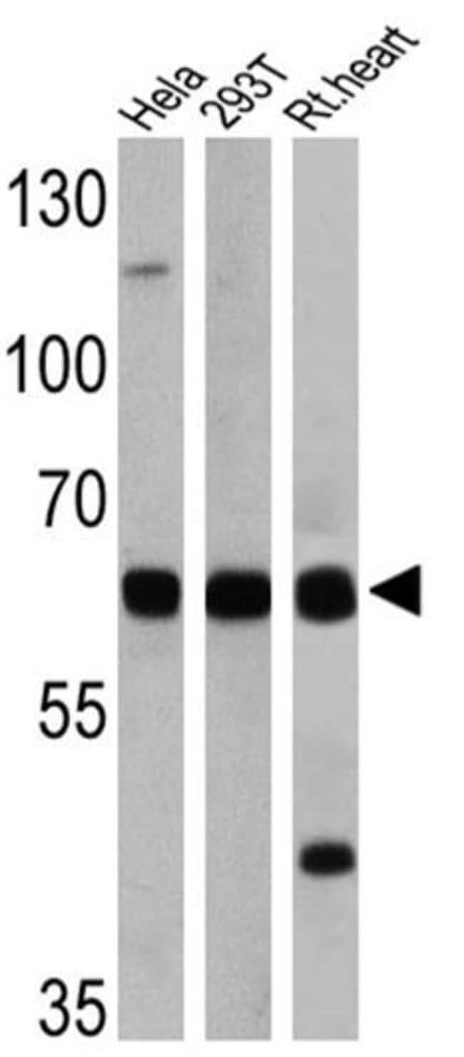 FOXO1 Rabbit anti-Human, Rat, Polyclonal, Invitrogen 100 µg; Unconjugated