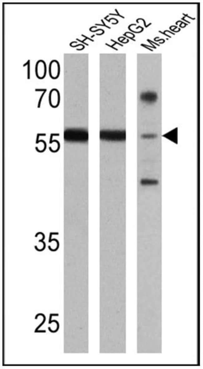 RARB Rabbit anti-Human, Mouse, Polyclonal, Invitrogen 100 µL; Unconjugated