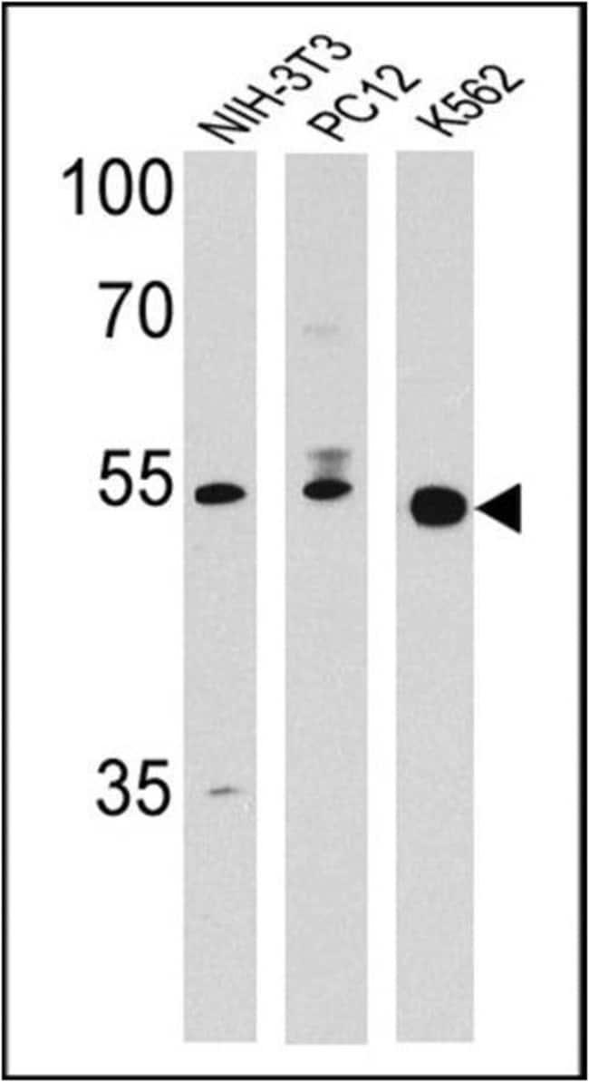 PPAR delta Rabbit anti-Human, Mouse, Rat, Polyclonal, Invitrogen 100 µL;