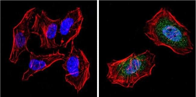 PPAR gamma-2 Rabbit anti-Human, Mouse, Polyclonal, Invitrogen 100 µL;