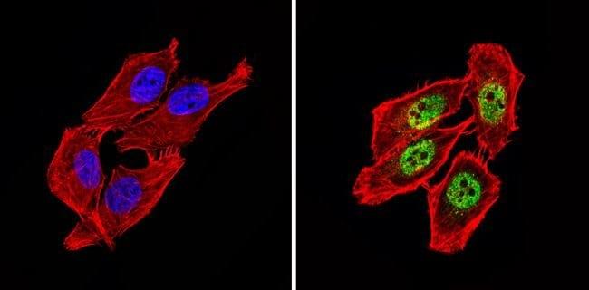NCoR2 Rabbit anti-Human, Mouse, Polyclonal, Invitrogen 100 µg; Unconjugated