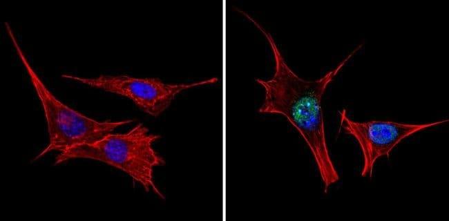 TRIM28 Rabbit anti-Human, Mouse, Rat, Polyclonal, Invitrogen 100 µL;