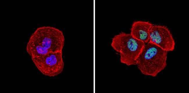 SIN3A Rabbit anti-Human, Mouse, Polyclonal, Invitrogen 100 µg; Unconjugated