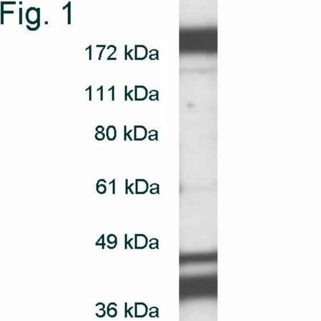 DNMT1 Rabbit anti-Human, Rat, Polyclonal, Invitrogen 100 µg; Unconjugated