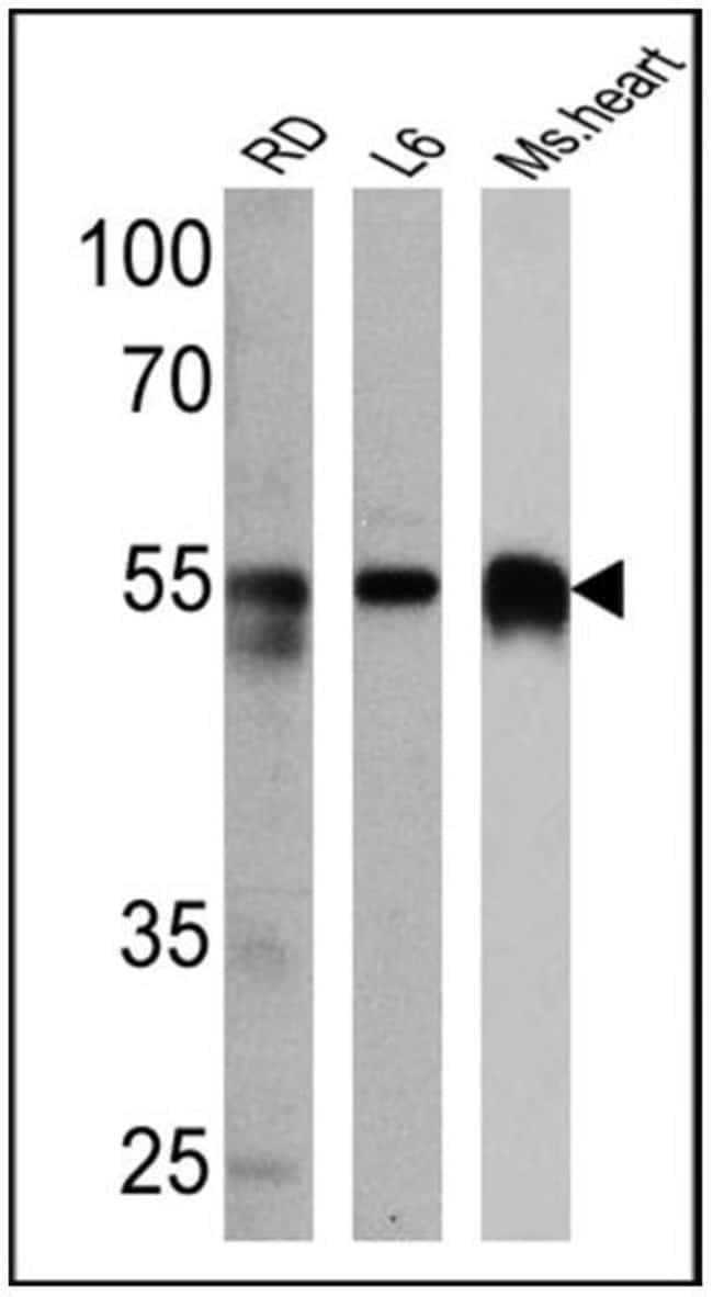 Calsequestrin Rabbit anti-Canine, Human, Mouse, Ovine, Rat, Polyclonal,