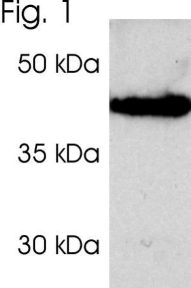 PSMD2 Rabbit anti-Human, Polyclonal, Invitrogen 100 µL; Unconjugated