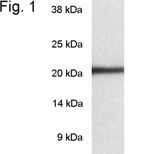 PSMB8 Rabbit anti-Human, Polyclonal, Invitrogen 100 µg; Unconjugated