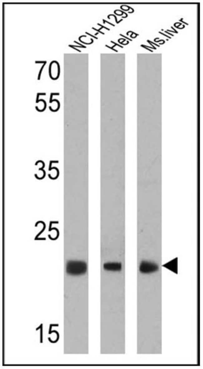 PSMB5 Rabbit anti-Bovine, Human, Mouse, Polyclonal, Invitrogen 100 µg;