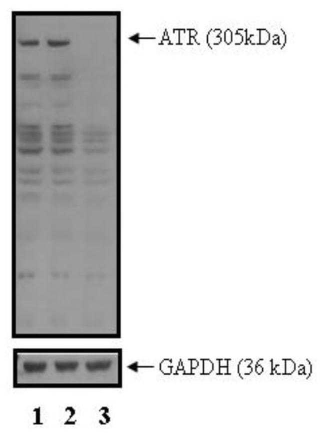 ATR Rabbit anti-Human, Polyclonal, Invitrogen 100 µL; Unconjugated