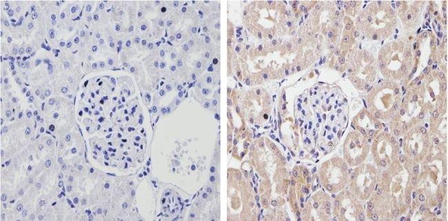CYP2C11 Rabbit anti-Feline, Human, Rat, Polyclonal, Invitrogen 100 µL;