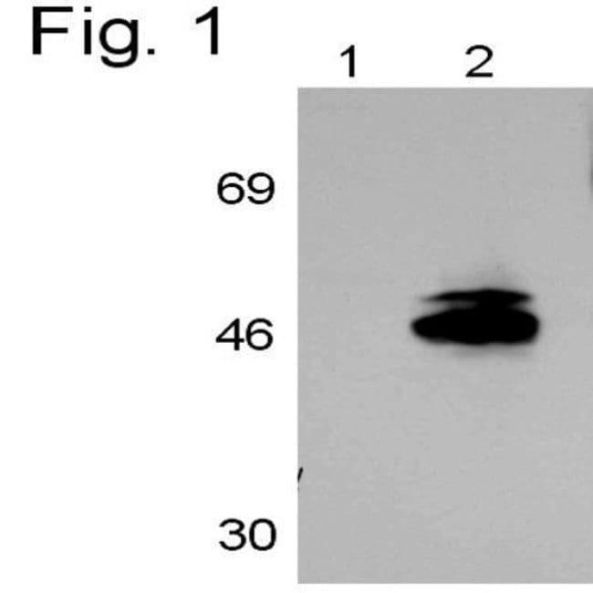 RAR gamma-1 Rabbit anti-Human, Rat, Polyclonal, Invitrogen 100 µL;