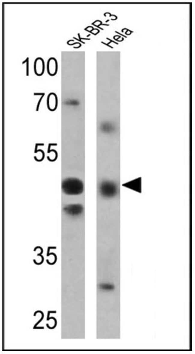 RAR gamma-2 Rabbit anti-Human, Polyclonal, Invitrogen 100 µL; Unconjugated