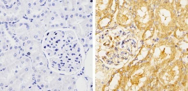 GRASP65 Rabbit anti-Human, Mouse, Rat, Polyclonal, Invitrogen 100 μL;
