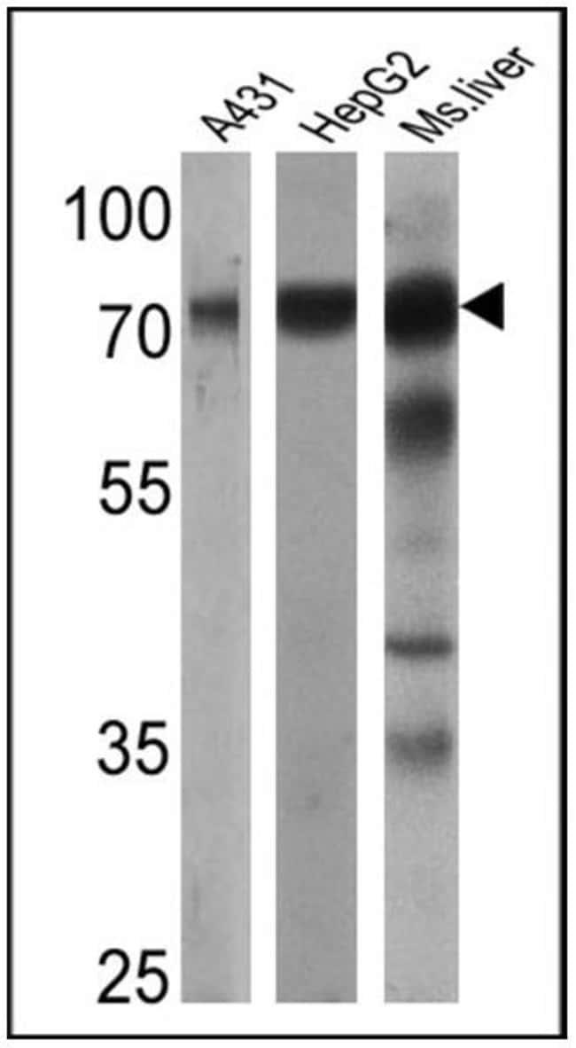 Transferrin Rabbit anti-Human, Mouse, Polyclonal, Invitrogen 100 μL;