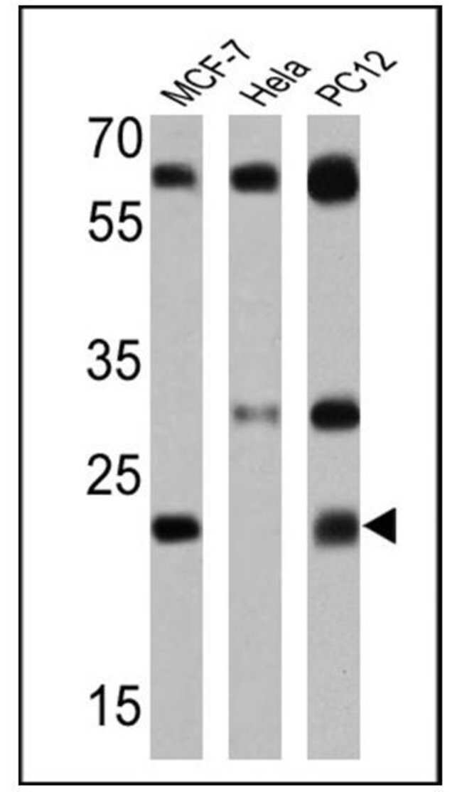 RAB5 Rabbit anti-Human, Rat, Polyclonal, Invitrogen 100 μL; Unconjugated:Antibodies