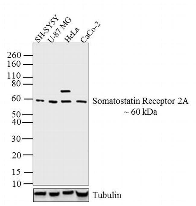 SSTR2 Rabbit anti-Human, Rat, Polyclonal, Invitrogen 100 µL; Unconjugated