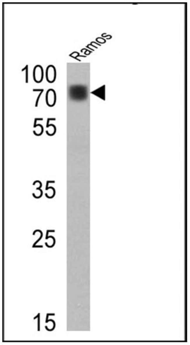IgD (Heavy chain) Rabbit anti-Human, Invitrogen 500 µL; Unconjugated:Life