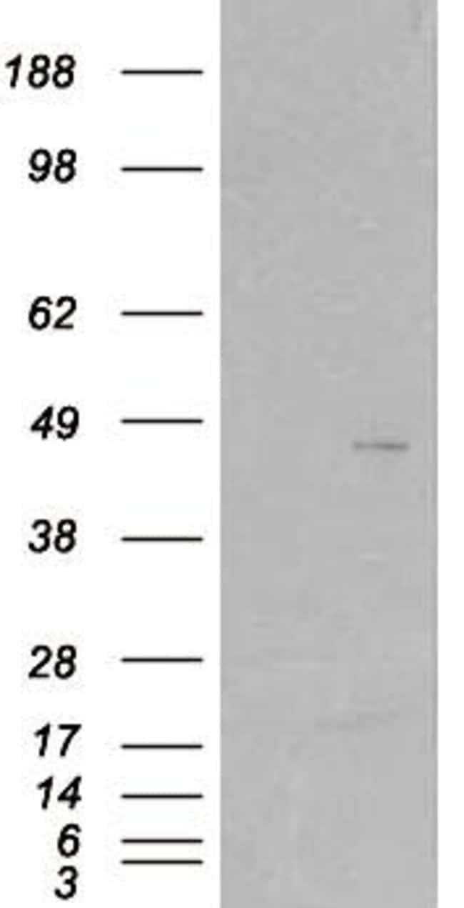 SKAP2 Goat anti-Human, Polyclonal, Invitrogen 100 µg; Unconjugated