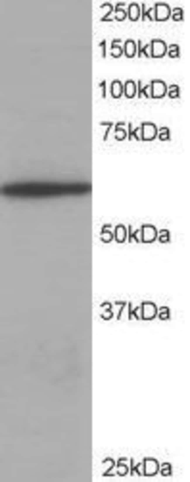 Coronin 1A Goat anti-Human, Mouse, Polyclonal, Invitrogen 100 µg;