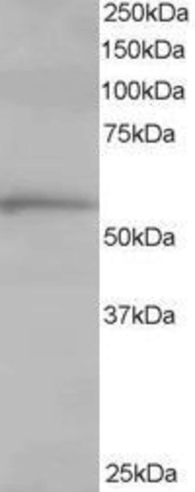 TCP1 Goat anti-Human, Polyclonal, Invitrogen 100 µg; Unconjugated