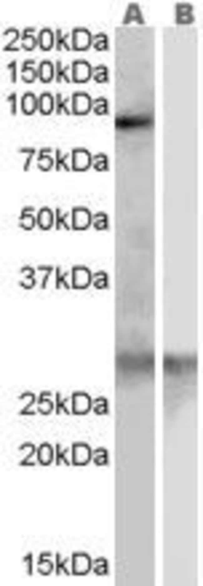 SCARF1 Goat anti-Human, Polyclonal, Invitrogen 100 µg; Unconjugated