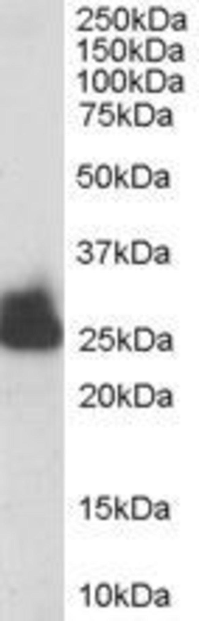 TPI1 Goat anti-Human, Mouse, Polyclonal, Invitrogen 100 µg; Unconjugated