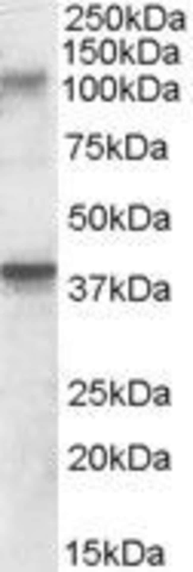 GluR7 Goat anti-Mouse, Rat, Polyclonal, Invitrogen 100 µg; Unconjugated