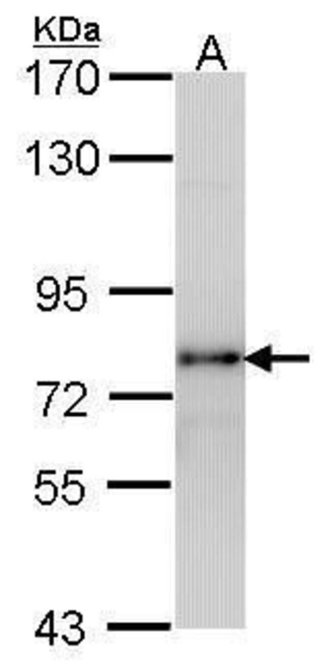LHR Rabbit anti-Human, Polyclonal, Invitrogen 100 µg; Unconjugated