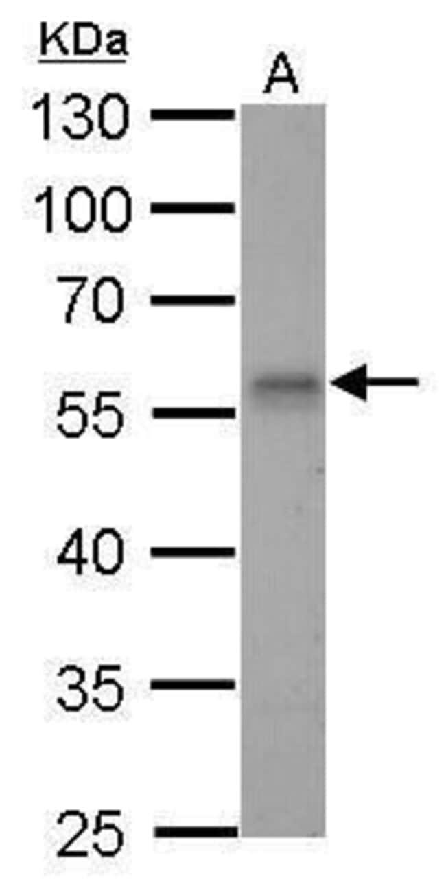 RAD9 Rabbit anti-Human, Mouse, Rat, Polyclonal, Invitrogen 100 µg;