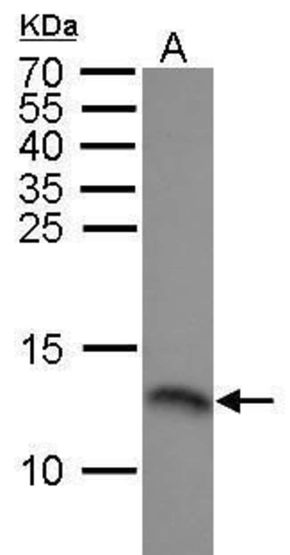 RPA14 Rabbit anti-Human, Polyclonal, Invitrogen 100 µg; Unconjugated