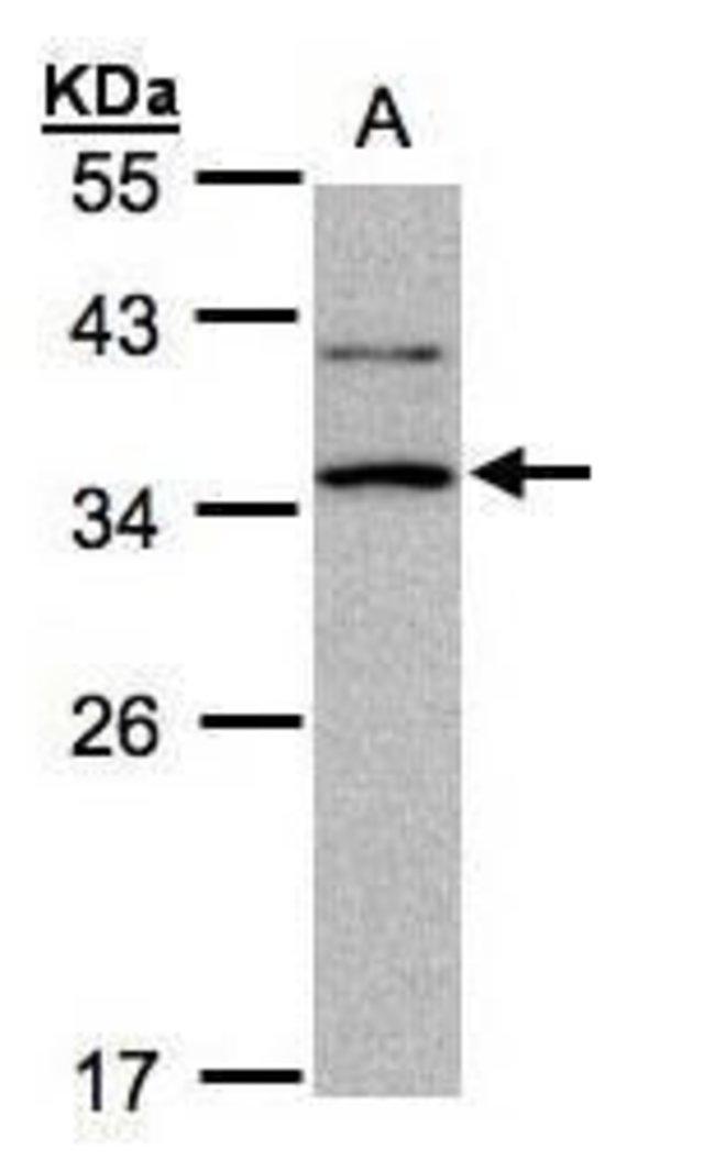 XRCC2 Rabbit anti-Human, Mouse, Polyclonal, Invitrogen 100 µg; Unconjugated