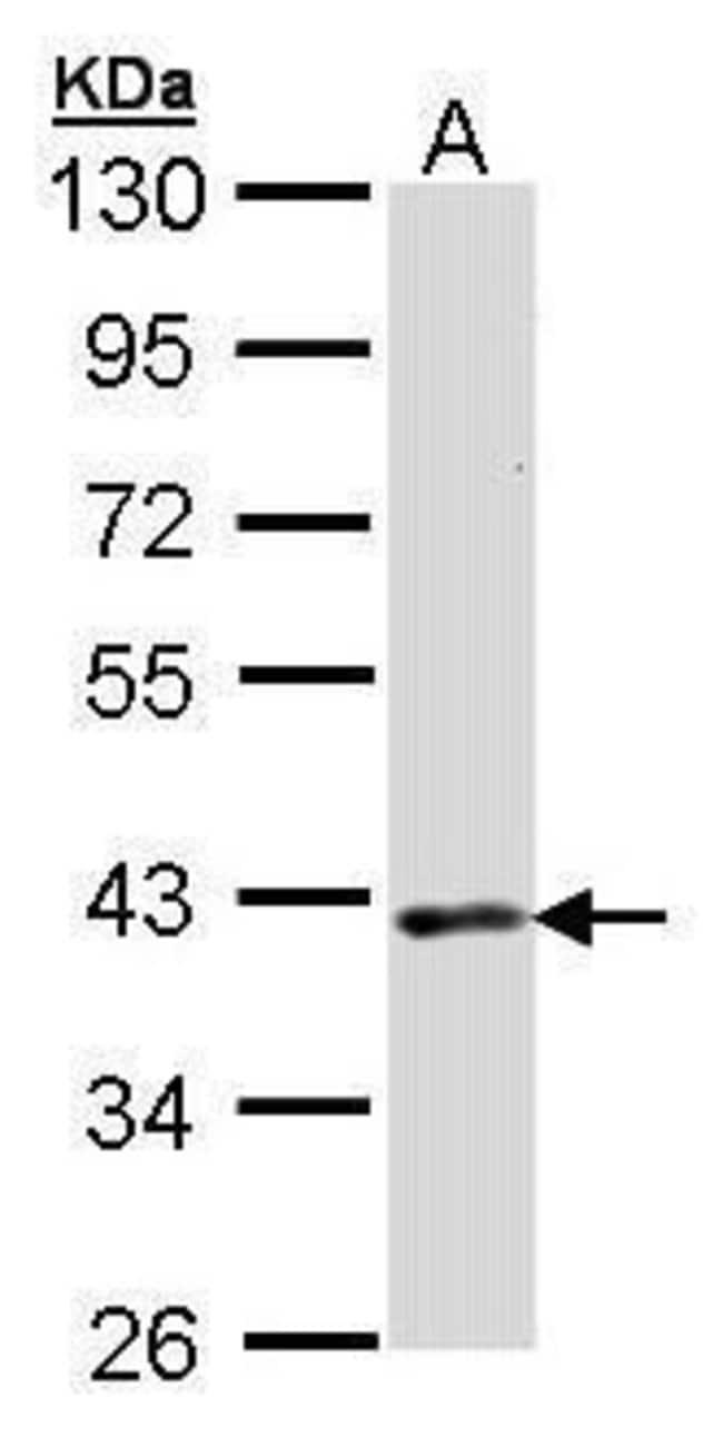 DMC1 Rabbit anti-Human, Polyclonal, Invitrogen 100 µg; Unconjugated