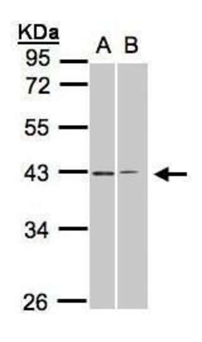GALR2 Rabbit anti-Human, Polyclonal, Invitrogen 100 µL; Unconjugated