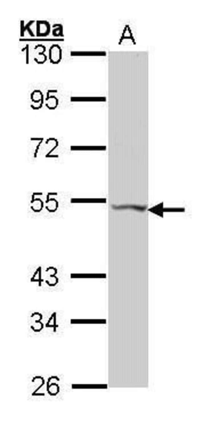 VPAC2 Rabbit anti-Human, Polyclonal, Invitrogen 100 µL; Unconjugated