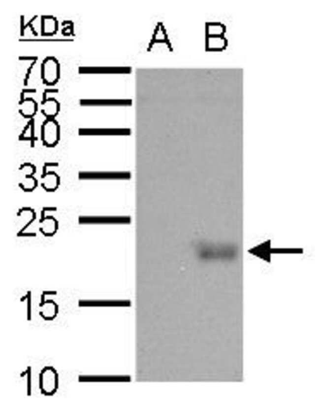 UBE2B Rabbit anti-Human, Mouse, Polyclonal, Invitrogen 100 µL; Unconjugated