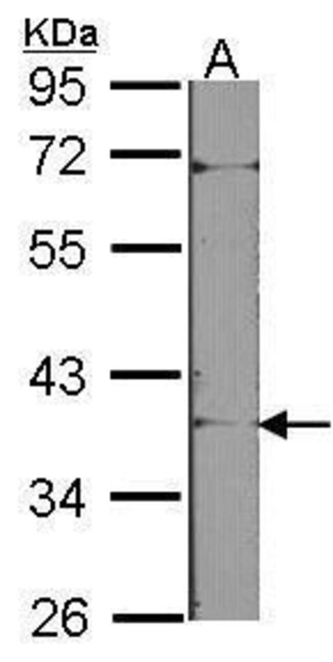 Tartrate Resistant Acid Phosphatase, Polyclonal, Invitrogen 100µL;
